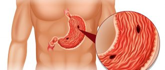 Де-Нол при эрозии желудка