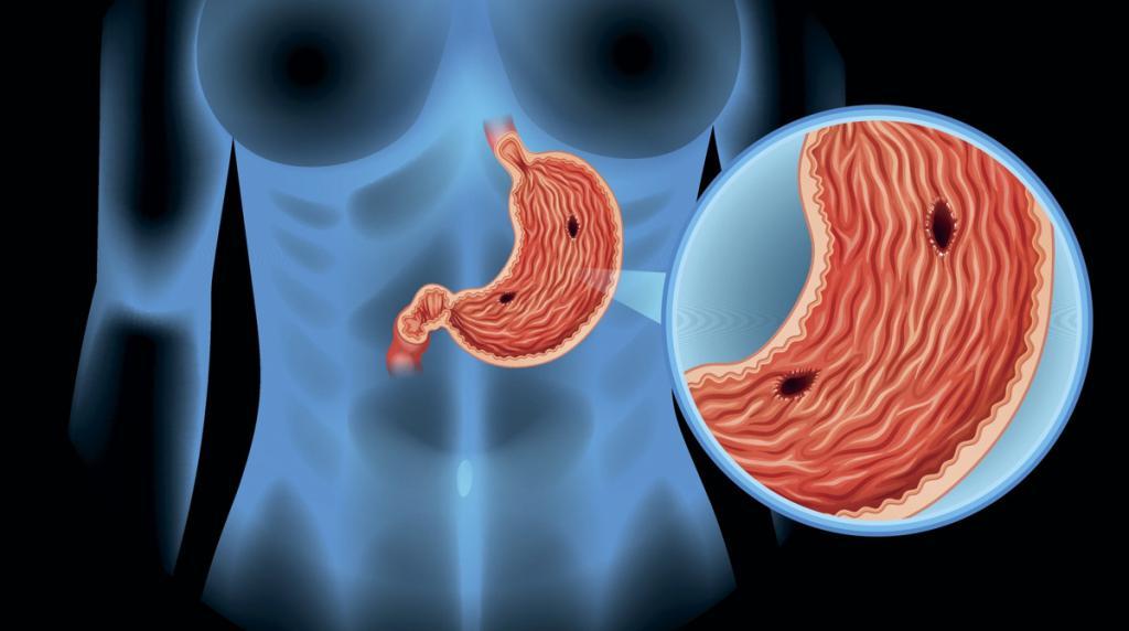 Пример язвы желудка